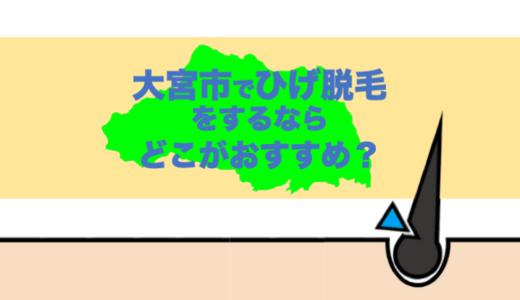 【決定版】大宮でヒゲ脱毛するならどこ?厳選5店舗を紹介!