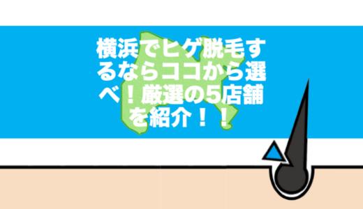 横浜でひげ脱毛するならココから選べ!厳選の5店舗を選んでみた!